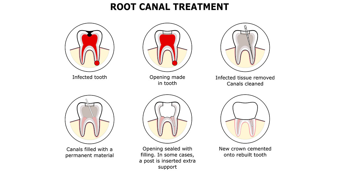 Root Canal Treatments | Brisbane | Hawthorne Dental